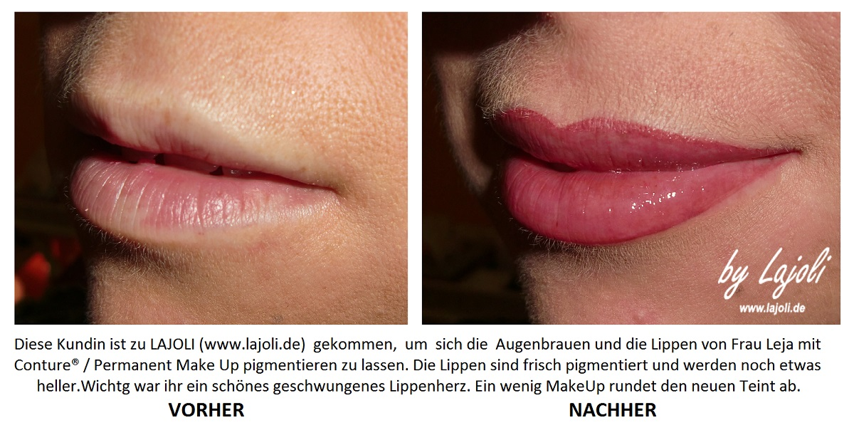 LAJOLI Elite-Studio für Permanent Make Up  Hamburg -  Fadenlifting und Lippen aufspritzen