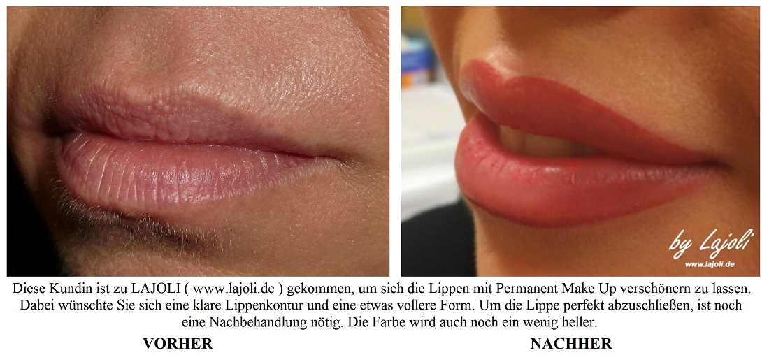 Lippen Bilder aus dem LAJOLI Top-Elite-Studio für Permanent Make Up, Faltenunterspritzung und Fadenlifting in Hamburg